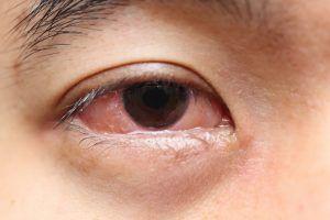 conjuntivitis ojo rojo legañas